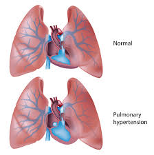 Pulmonary Hyptertension Caused By Phentermine